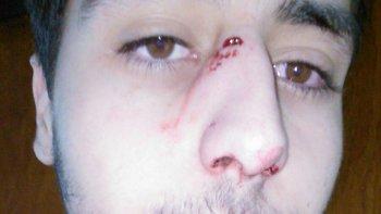 Semeñenko sufrió la fractura del tabique por el golpe de su colega.